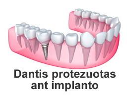Protezavimas panaudojant dantų implantus