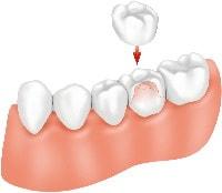 Cirkonio ir metalo keramikos dantų karūnėlės