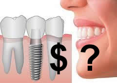 Kiek kainuoja dantų implantacija?