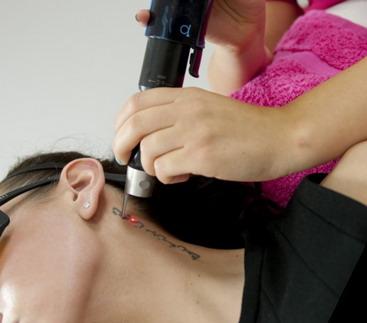 Tatiuruotės pašalinimas dermatologijos klinikoje